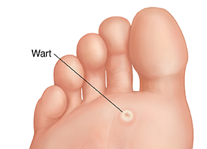 Plantar Warts and Your Child's Feet