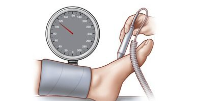 Ankle Brachial test